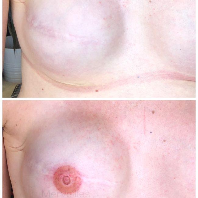 Merveilles_tattoo Aréoles mammaires 3D
